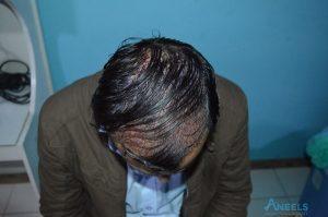 Islamabad Hair Transplant(aneels hair transplant)