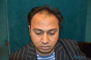 hair_transplant_islamabad